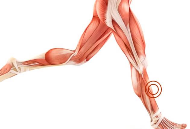 physio-shin-splints