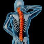 xray-back-pain