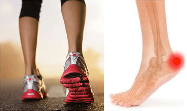 What to do with an Achilles Tendon Injury?